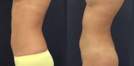 liposuction colombia 231 - 3-min