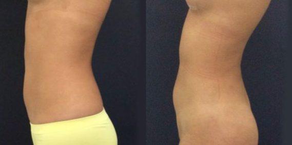 liposuction colombia 231 - 4-min