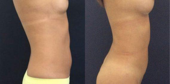 liposuction colombia 231 - 6-min
