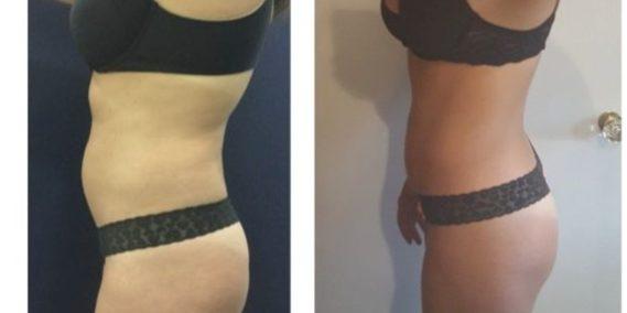 liposuction colombia 247 - 3-min