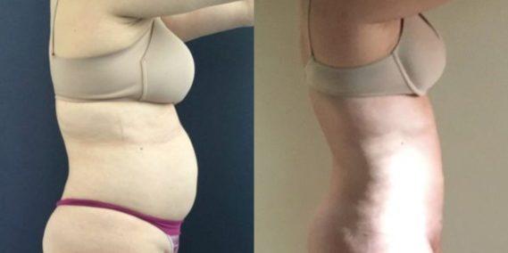 liposuction colombia 248 - 3-min