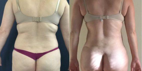 liposuction colombia 248 - 4-min