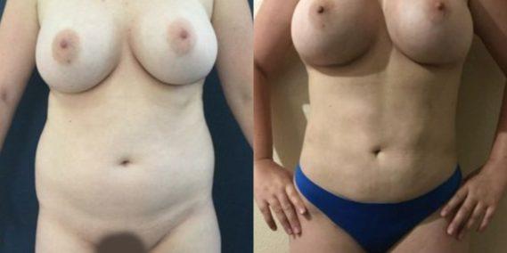 liposuction colombia 251 - 1-min
