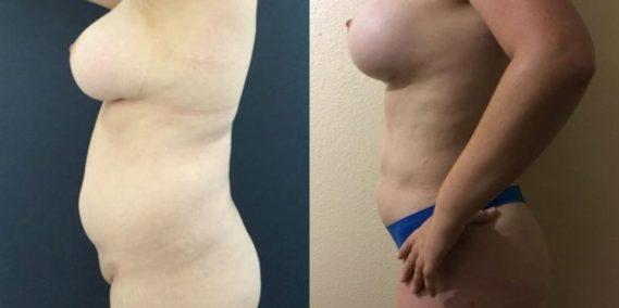 liposuction colombia 251 - 3-min