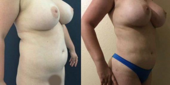 liposuction colombia 251 - 4-min