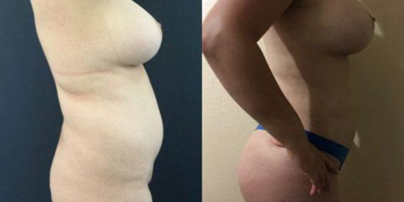 liposuction colombia 251 - 5-min