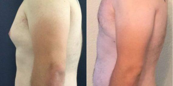 liposuction colombia 258 - 3-min