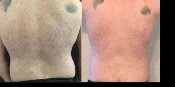 liposuction colombia 258 - 6-min