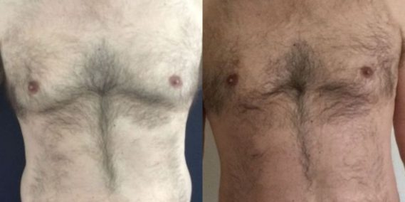 liposuction colombia 260 - 1-min