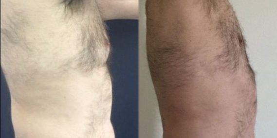 liposuction colombia 260 - 5-min