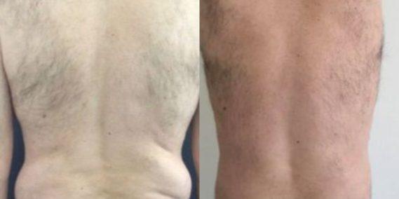 liposuction colombia 260 - 6-min