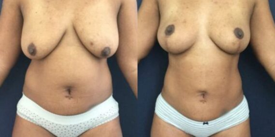 liposuction colombia 273 - 1-min