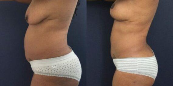 liposuction colombia 273 - 2-min