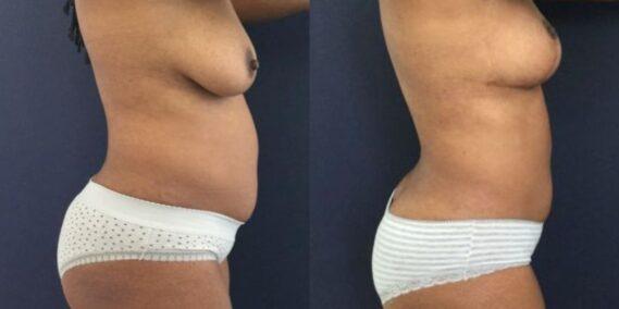 liposuction colombia 273 - 3-min