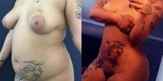 liposuction colombia 277 - 1-min
