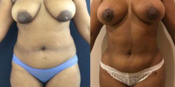 liposuction colombia 279 - 1-min