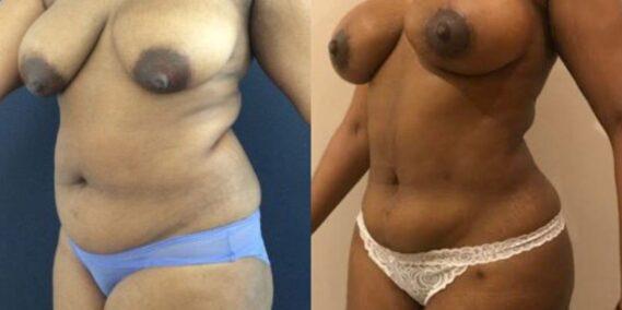 liposuction colombia 279 - 2-min