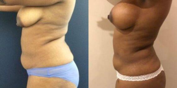 liposuction colombia 279 - 3-min
