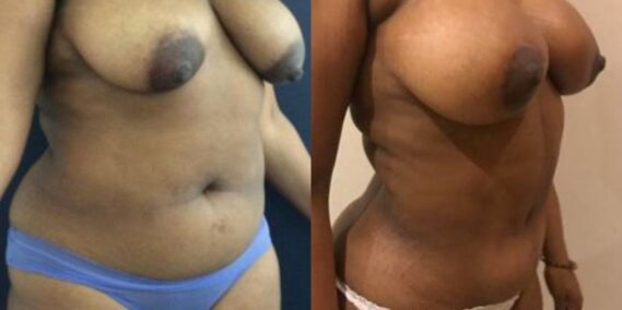 liposuction colombia 279 - 4-min