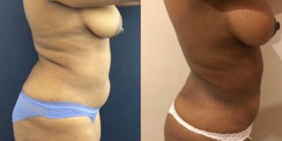 liposuction colombia 279 - 5-min