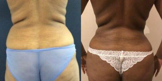 liposuction colombia 279 - 6-min