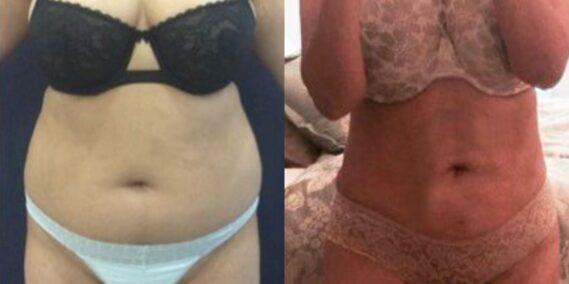 liposuction colombia 309 - 1-min