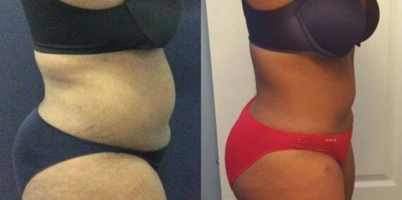 liposuction colombia 311 - 2-min