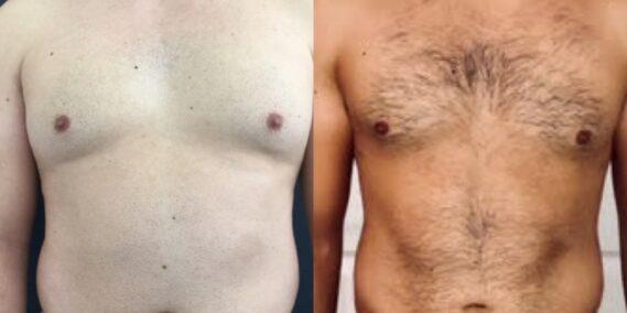 liposuction colombia 323 - 1-min