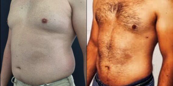 liposuction colombia 323 - 4-min