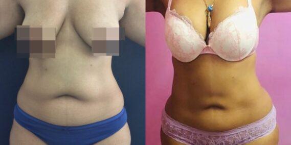 liposuction colombia 331 - 1-min