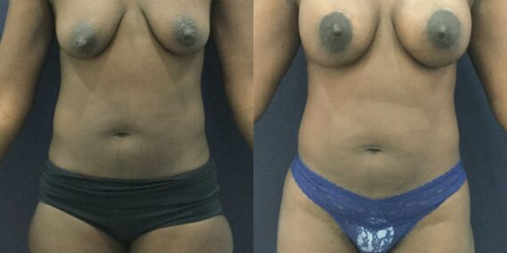 liposuction colombia 343 - 1-min