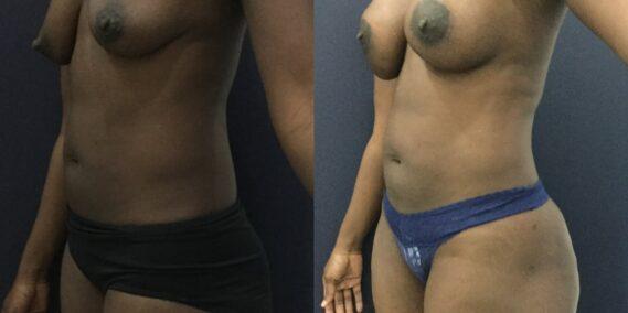 liposuction colombia 343 - 2-min