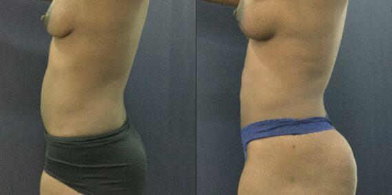 liposuction colombia 343 - 3-min