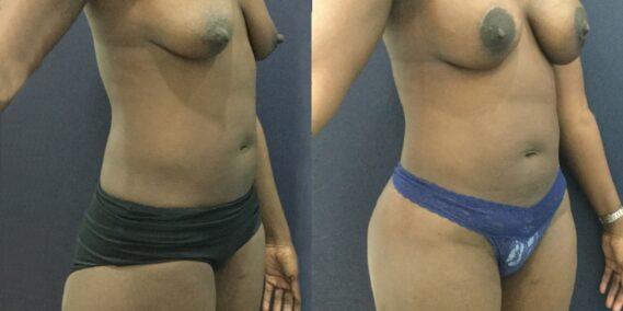 liposuction colombia 343 - 4-min