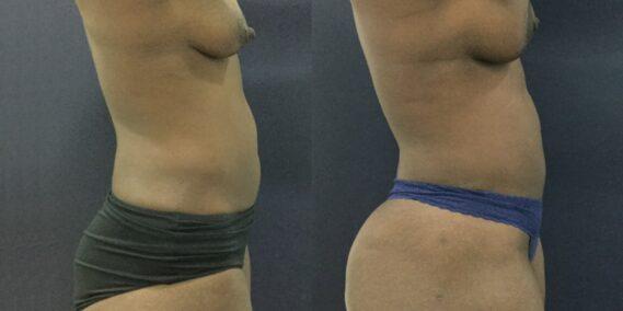 liposuction colombia 343 - 5-min