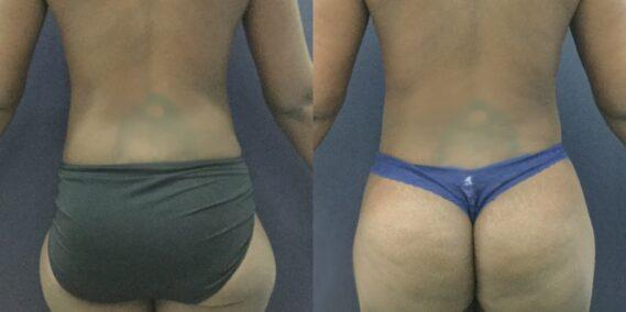 liposuction colombia 343 - 6-min