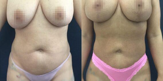 liposuction colombia 358 - 1-min