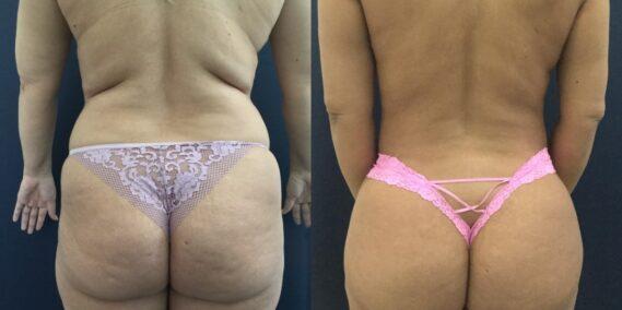 liposuction colombia 358 - 4-min