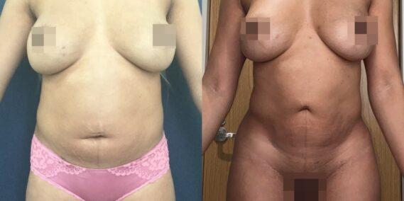 liposuction colombia 363 - 1-min