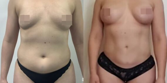 liposuction colombia 366 - 1-min