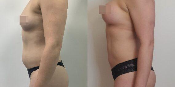 liposuction colombia 366 - 3-min