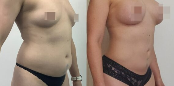 liposuction colombia 366 - 4-min