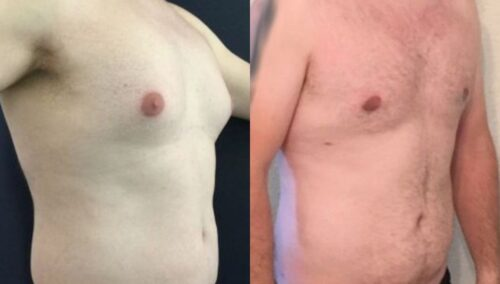 male reduction colombia 258-4-min