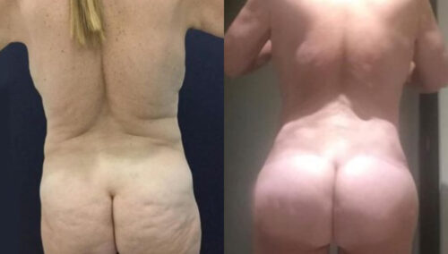posterior body lift colombia 282-4