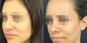 rhinoplasty colombia 212-2