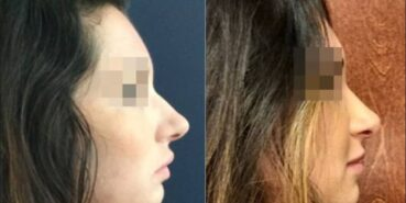 rhinoplasty colombia 235-5