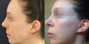 rhinoplasty colombia 240-3