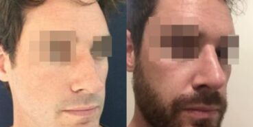 rhinoplasty colombia 295-2-min