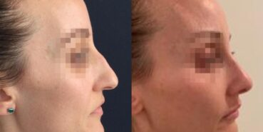 rhinoplasty colombia 321-3-min
