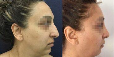 rhinoplasty colombia 342-3-min